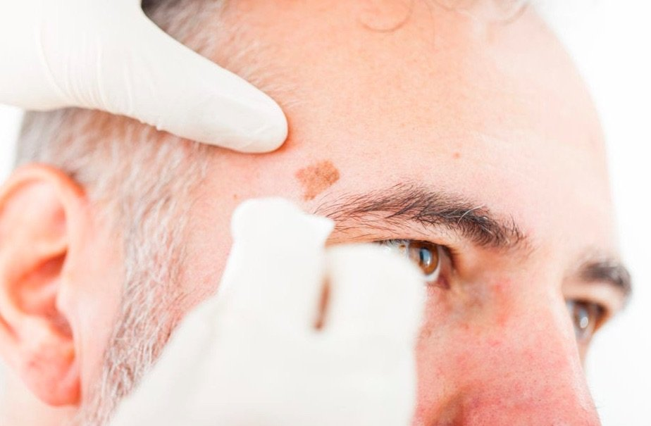 Actinic Keratosis treatment in Chicago