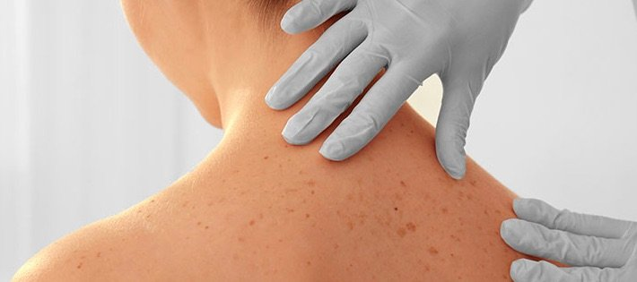 Actinic Keratosis treatment in Chicago with Kovak Cosmetic Center