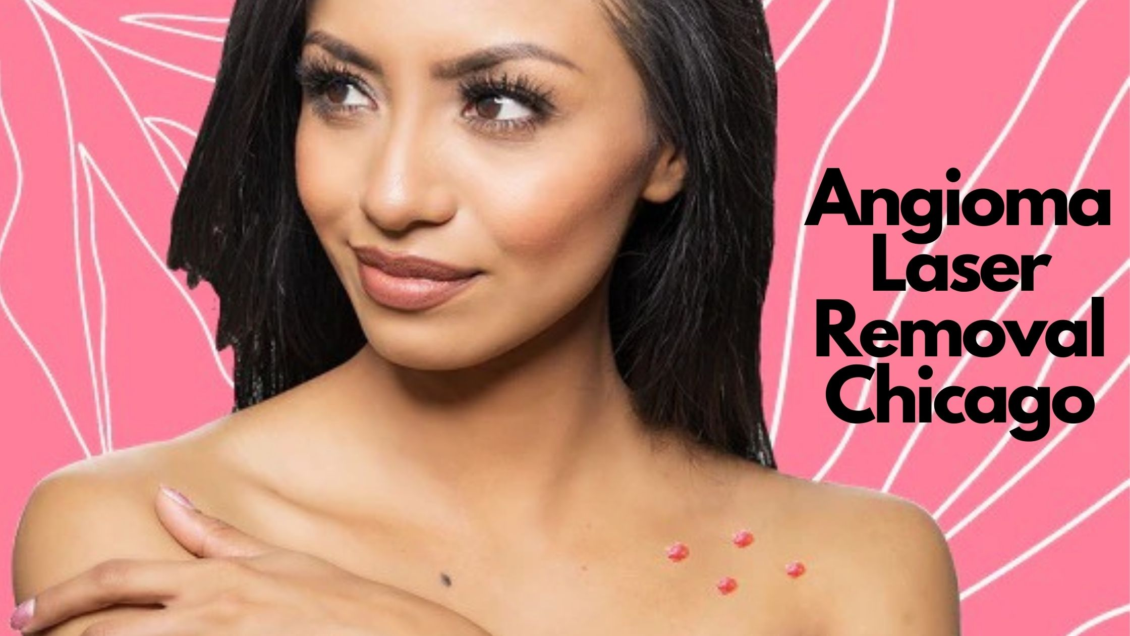 Angioma Laser Removal Chicago