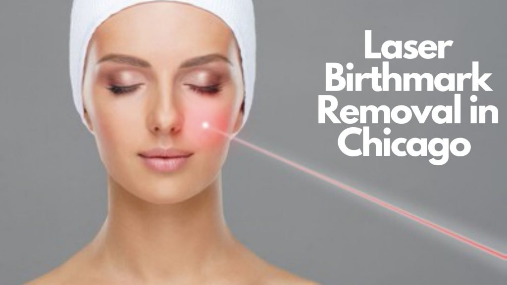 irthmark Removal - Laser Treatment Services in Chicago
