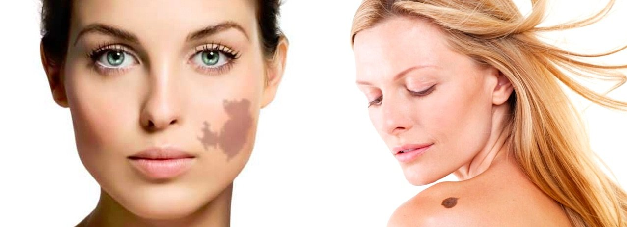 Birthmark Removal in Chicago with Kovak Cosmetic Center