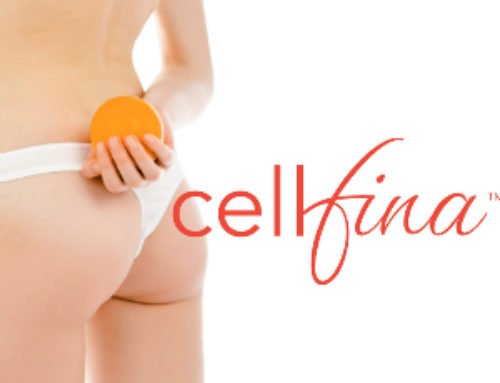 Chicago Cellfina Treatments - Cellulite Removal Services at Kovak Cosmetic Center
