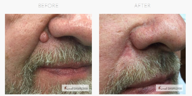 Chicago Mole Removal Before & After Photos