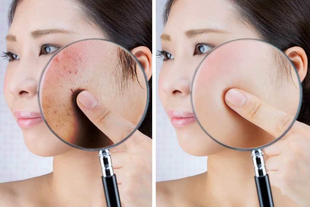 Chicago Skin Condition Treatments