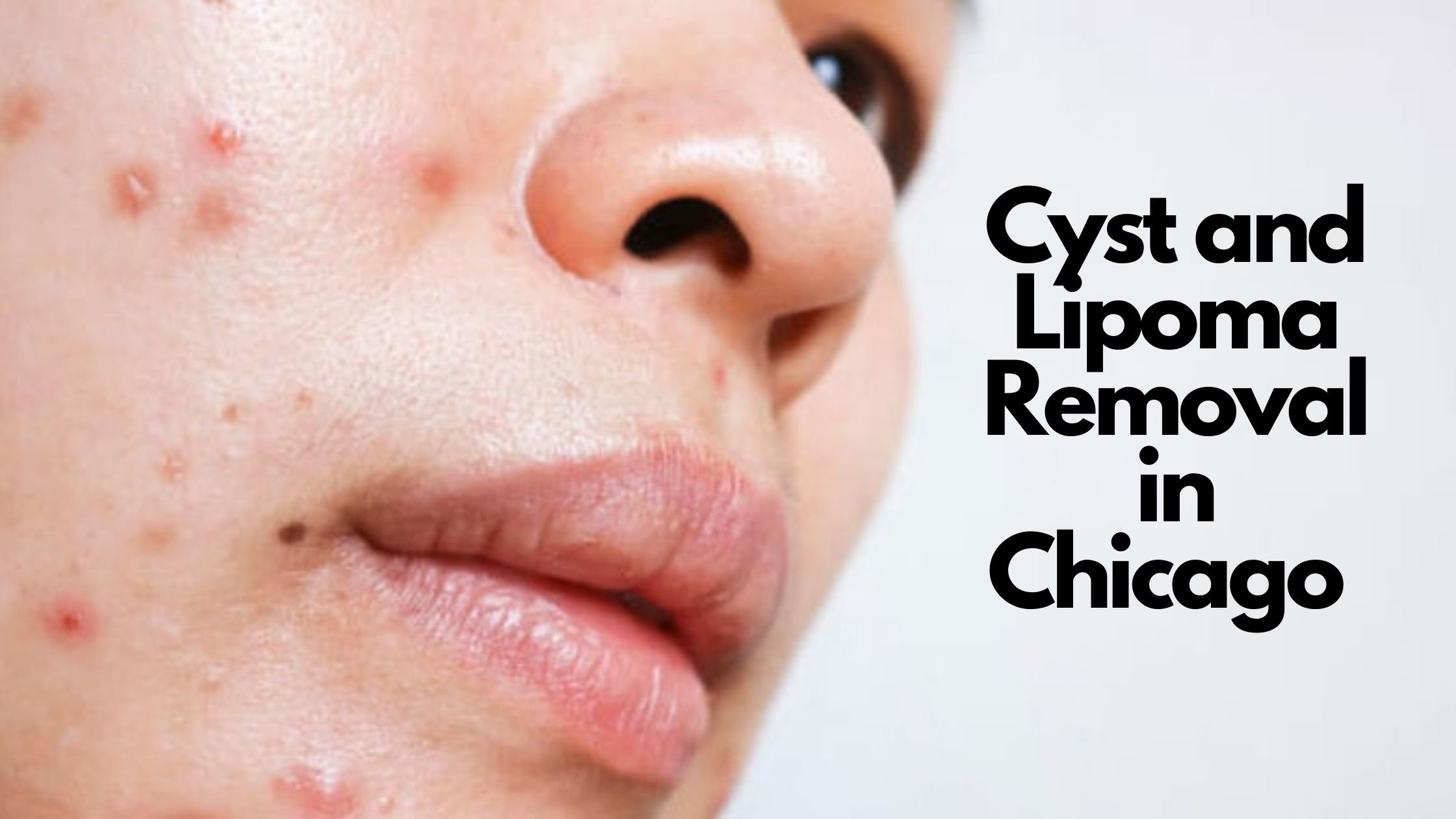cyst & lipoma removal in chicago