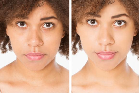 Eye Enhancement treatments in chicago - removal under eye bags & dark circles