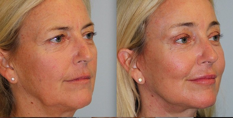 Improve volume in the face with Kovak Cosmetic Center in Chicago