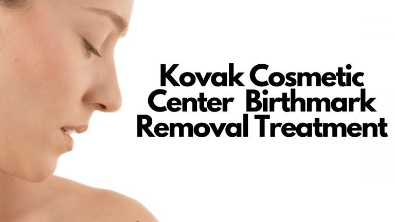 Kovak Cosmetic Center Birthmark Removal Treatment