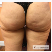 Cellulite Treatment Before After Photos