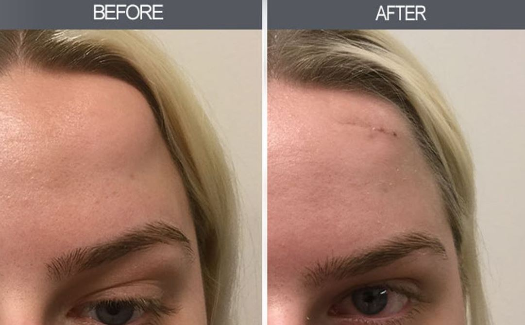 Lipoma Treatments in Chicago - Before & After