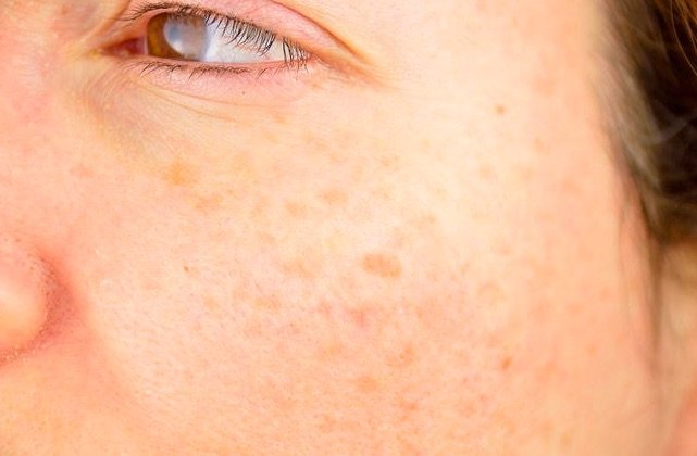 best Actinic Keratosis treatment in Chicago