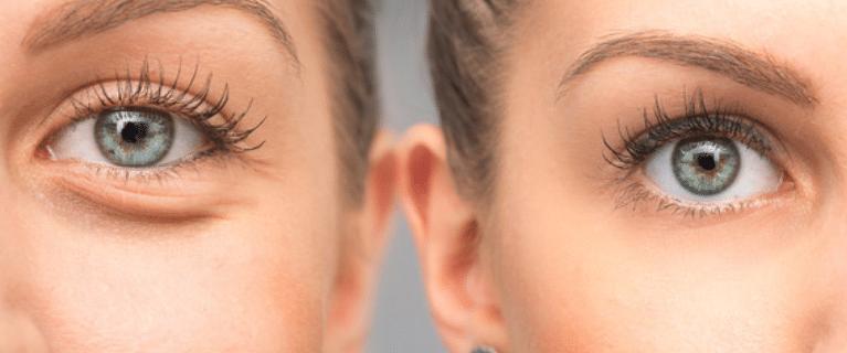 dark circles under eyes - treatment center in Chicago