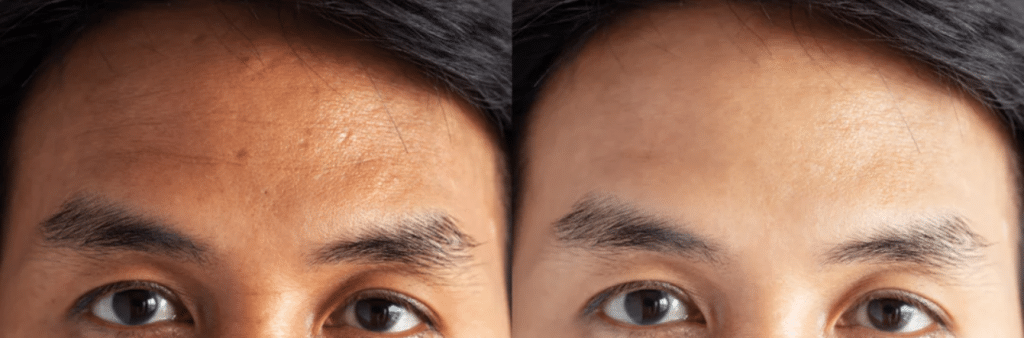 forehead wrinkle treatments chicago