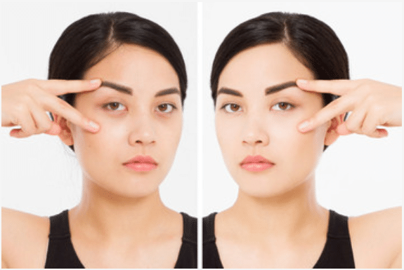 under eye bags & dark eye circles - before & after treatment