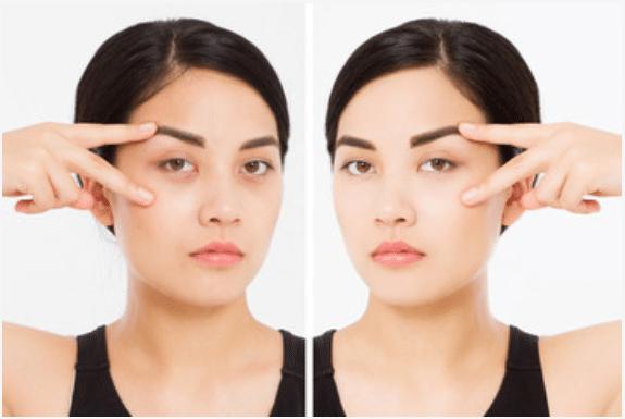 under eye bags & dark eye circles - before & after treatment