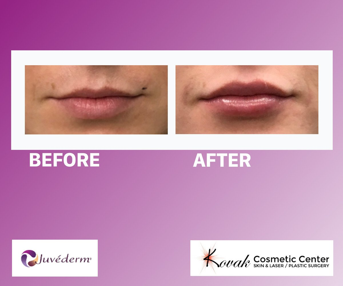 Lip Filler Before After Chicago Example