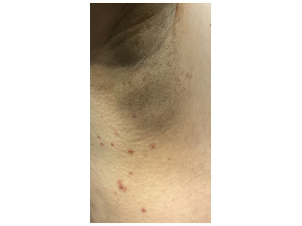 Skin Tags Before & After Photos - Skin Tag Removal Chicago