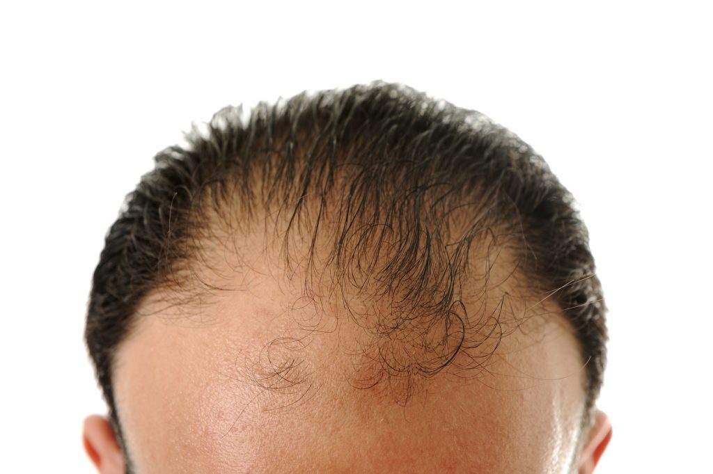hair loss treatment services in chicago