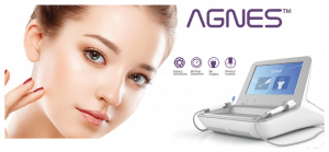 Agnes RF Treatments for Wrinkles & Acne in Chicago IL