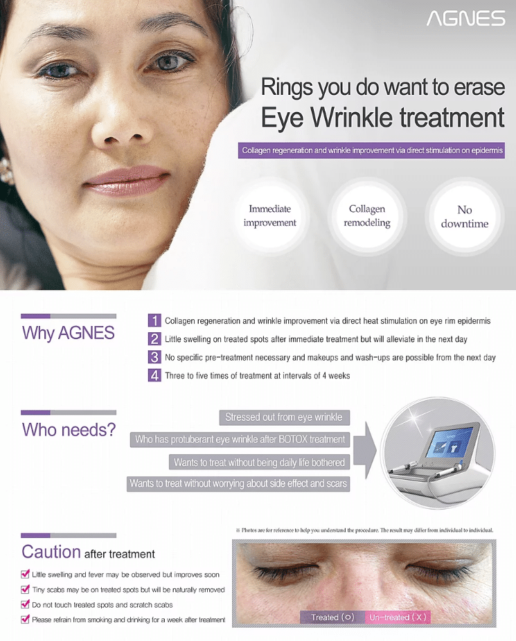 Agnes eye wrinkle treatment services in Chicago