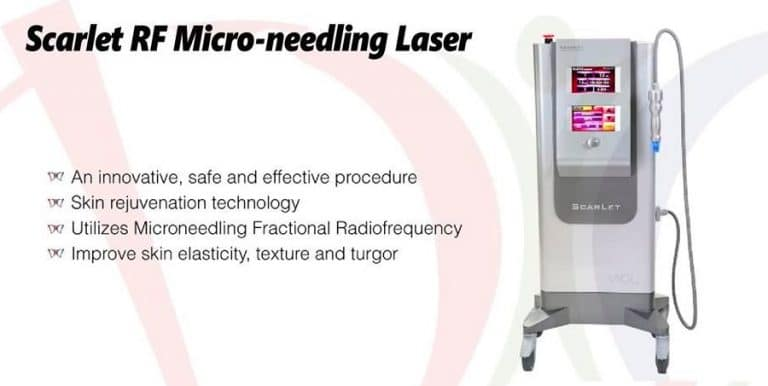 Scarlet RF Microneedling Laser Treatments at Kovak Cosmetic Center Chicago