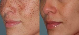 Dark & Brown spot removal services in Chicago Skin Laser Treatments Oakbrook IL