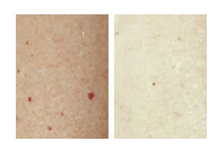 Red Mole Removal - Before & After Chicago Laser Therapy