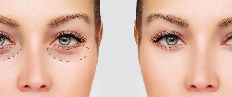 Non-Surgical Eye Lift Procedure in Chicago