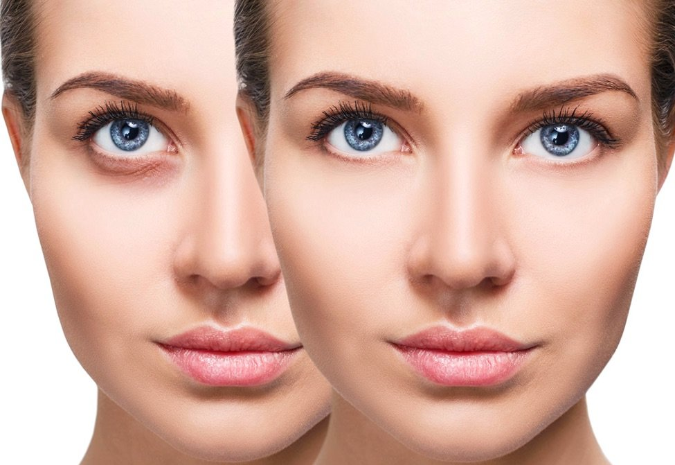 Candidates for a Non-Surgical Under Eye Bag Treatment Procedures in Chicago