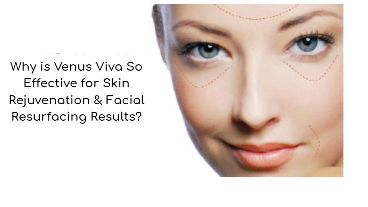 hy Chicago Venus Viva Treatments Are So Effective for Skin Rejuvenation and Facial Resurfacing Results