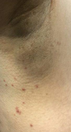Skin-Tags-1